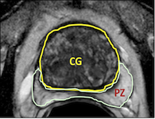 prostate anatomy radiographics