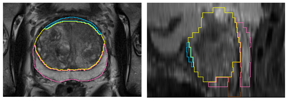 Example case in axial and sagittal view with corresponding zone segmentation. The 4-class segmentation consists of peripheral zone (pink), transitional zone (yellow), anterior fibromuscular stroma (blue)  and distal prostatic urethra (brown)