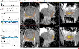 QIN-Prostate-Repeatability 3D-Slicer image